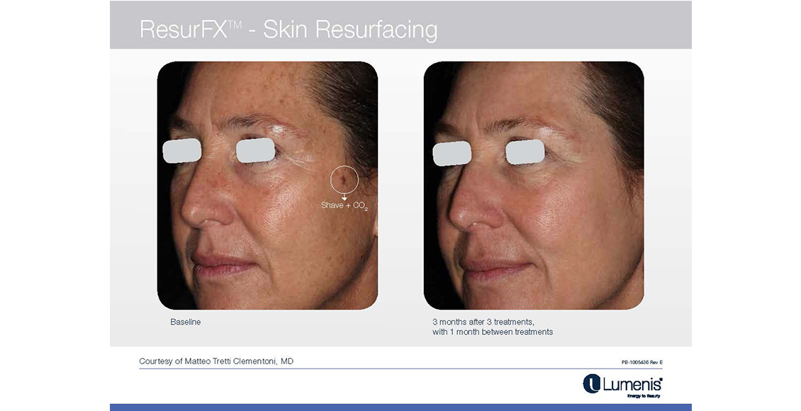 fractional non ablative skin resurfacing reviews
