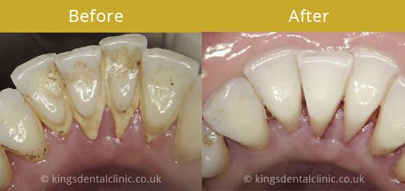 doctor diamond teeth whitening reviews