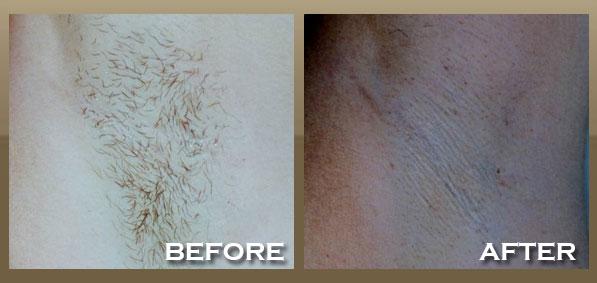 hollywood laser hair removal reviews